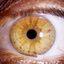33. Взрослые с нейрофиброматозом фото