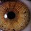 7. Взрослые с нейрофиброматозом фото