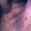 12. Нейрофиброматоз фото