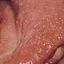 52. Нейрофиброматоз фото