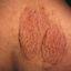 68. Нейрофиброматоз фото