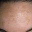 1. Мелазма на лице фото