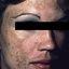 10. Мелазма на лице фото