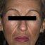 11. Мелазма на лице фото