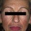 12. Мелазма на лице фото