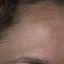 13. Мелазма на лице фото