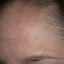 14. Мелазма на лице фото