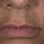 15. Мелазма на лице фото