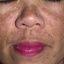 17. Мелазма на лице фото