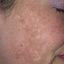 19. Мелазма на лице фото