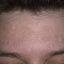 21. Мелазма на лице фото