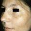 3. Мелазма на лице фото