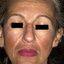 5. Мелазма на лице фото