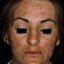 6. Мелазма на лице фото