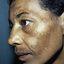 7. Мелазма на лице фото