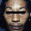 8. Мелазма на лице фото