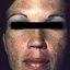 9. Мелазма на лице фото