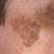 Лентиго меланома