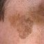 1. Лентиго меланома фото