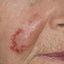 14. Лентиго меланома фото