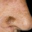 16. Лентиго меланома фото