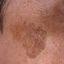 2. Лентиго меланома фото