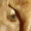 23. Лентиго меланома фото