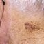 25. Лентиго меланома фото
