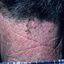 26. Лентиго меланома фото