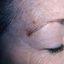 28. Лентиго меланома фото