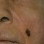 7. Лентиго меланома фото