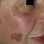 8. Лентиго меланома фото