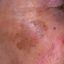 9. Лентиго меланома фото