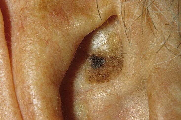 Пигментация кожи при себорейном дерматите