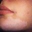 10. Витилиго на лице фото