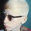 1. Альбинизм фото