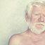 11. Альбинизм фото