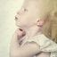 12. Альбинизм фото