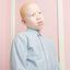 18. Альбинизм фото