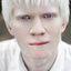20. Альбинизм фото
