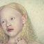 24. Альбинизм фото