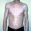 5. Альбинизм фото