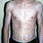 6. Альбинизм фото
