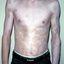 9. Альбинизм фото