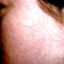 10. Сыпь при краснухе у взрослых фото