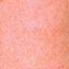3. Сыпь при краснухе у взрослых фото
