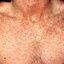 6. Сыпь при краснухе у взрослых фото