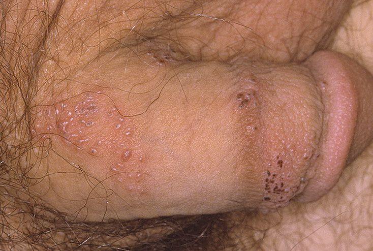 симптомы, требующие приема венеролога