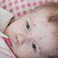 14. Ветряная оспа у детей фото