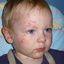 2. Ветряная оспа у детей фото